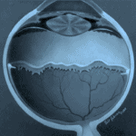 Ретинопатия на недоносеното
