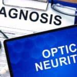 оптичен неврит